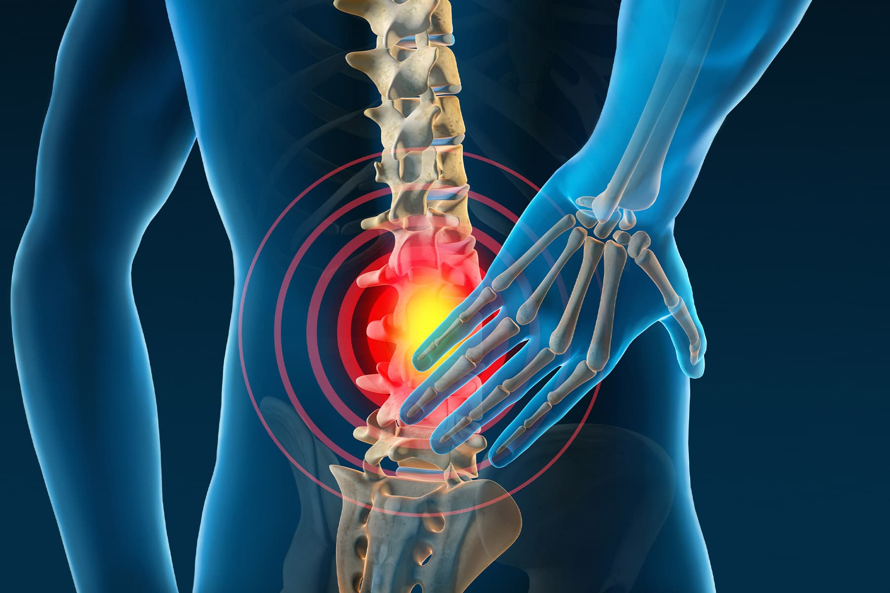 Top 12 Surprised Reasons Of Chronic Back Pain
